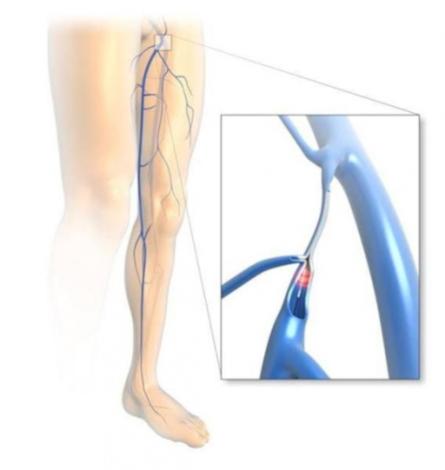 laser-safinektomi